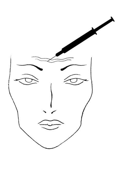 Procedure: Botulinum Injections